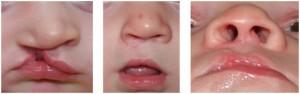 Лечение расщелины губы: до и после
